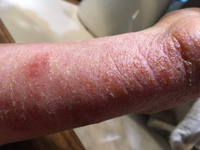 dann die ganz typische extrem trockene Haut